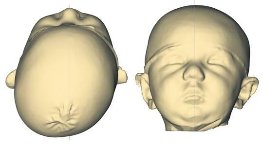 Diese 3-D-Aufnahme des Kopfes von Leon Clemens zeigt deutlich die schiefe Schädelbasis des Säuglings, die der Helm korrigieren soll.